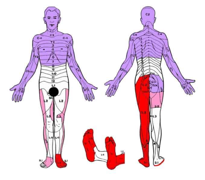 dermatom fizyoo (2)