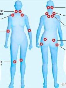 fibromiyalji-nedenleri