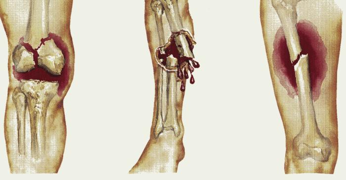 kemik bone kırık