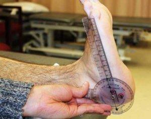 Eklem hareket açıklığı ölçümü