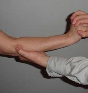 kubital tünel sendromu fizik tedavisi