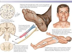 poliomyelit belirtileri