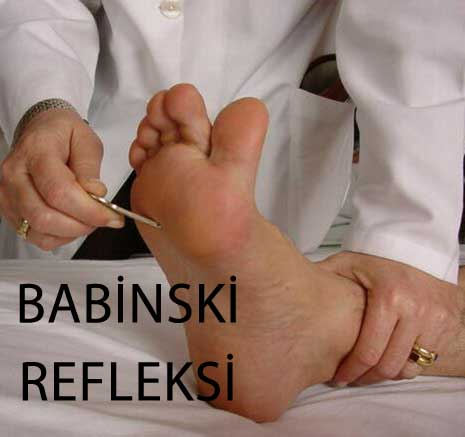babinski refleksi