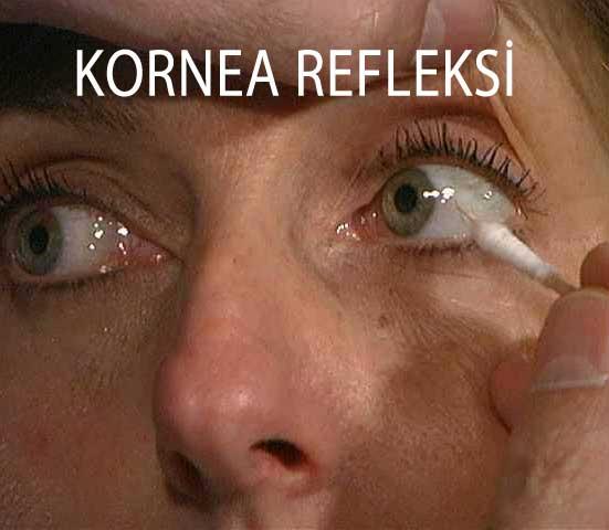 kornea refleksi
