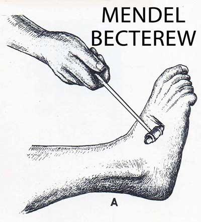 mendel becterew refleksi