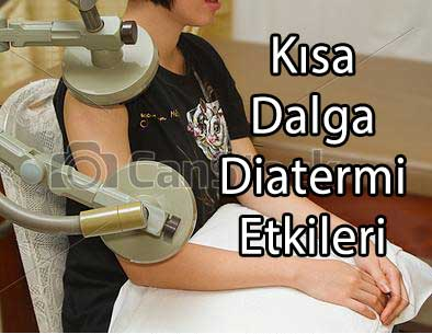 kısa dalga diatermi etkileri