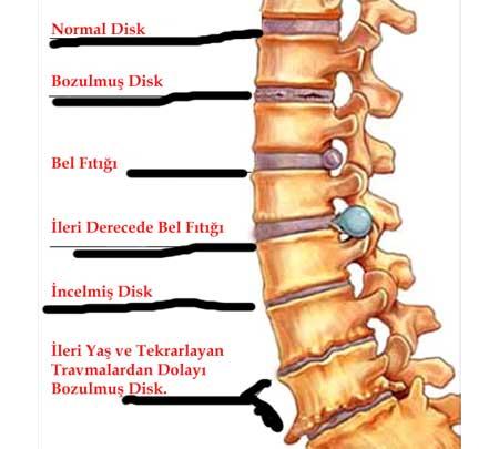 intervertebral disk bozuklukları