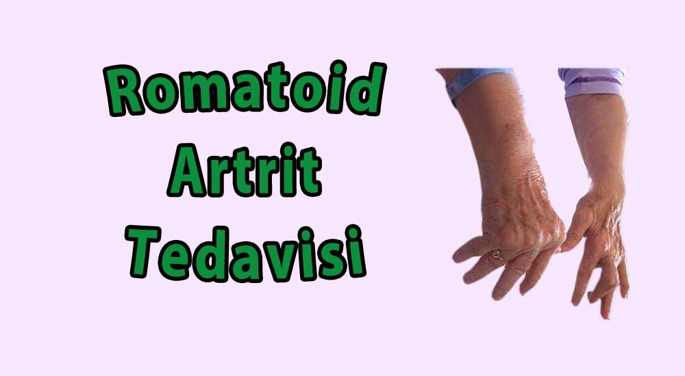 romatoid artrit tedavisi